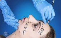 چرا در برزیل جراحی زیبایی رایگان است؟