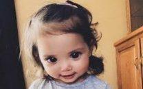 سندرمی نادر دختر خردسال را صاحب چشمانی فوق العاده زیبا کرد