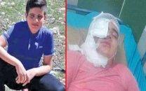 عکس قبل و بعد اسیدپاشی به پسر دانش آموز 11 ساله کرمانشاهی