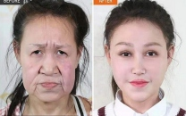 جراحی زیبایی یک پیرزن را به دختری 15 ساله تبدیل کرد (+عکس)