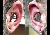 جراحی عجیب گوش برای افزایش فالوور