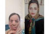 چهره عروس جوان تهرانی با اسید سوخت (+عکس قبل و بعد از حادثه)