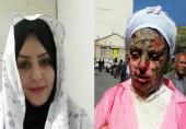 عکس تکاندهنده زن تبریزی قبل و بعد اسیدپاشی (+وضعیت پرونده)