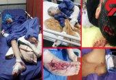 حمله سگ های بدون صاحب به طاها 11 ساله در تهران (+عکس دلخراش)