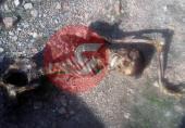 دو عکس از اسکلت پسر تهرانی با دندان های تمام لمینت/ او کیست؟